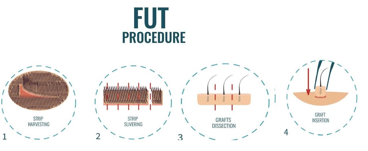 Follicular Unit Strip surgery-FUT Procedure